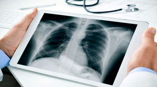 Radiological Technologists to strike