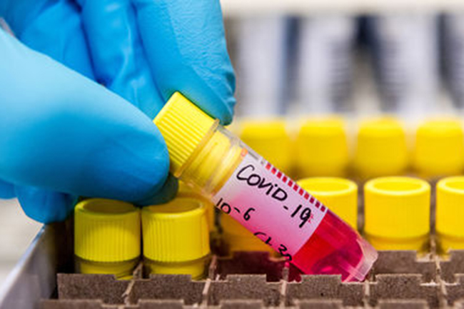 Two more COVID-19 patients recover; Positive cases tally drops to 97