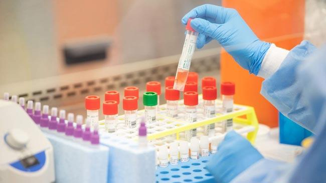 Coronavirus cases tally reaches 170