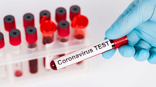 Two more Covid-19 cases take tally to 1,059