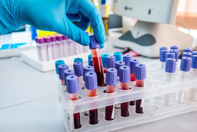 More cases jump coronavirus case tally to 1,199