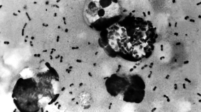Case of bubonic plague reported in China's Inner Mongolia