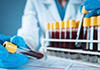 COVID-19 cases tally hits 2,763 as ten more test positive