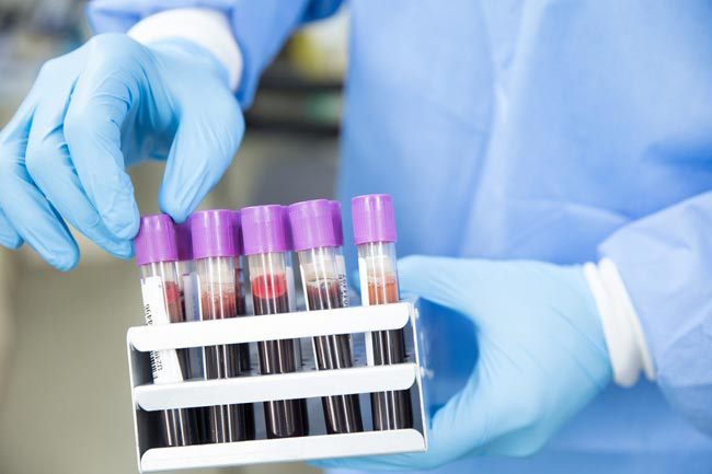 Five test positive for COVID-19 as cases tally hits 3,281