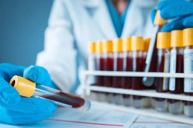 Fresh coronavirus cases move total to 3,312