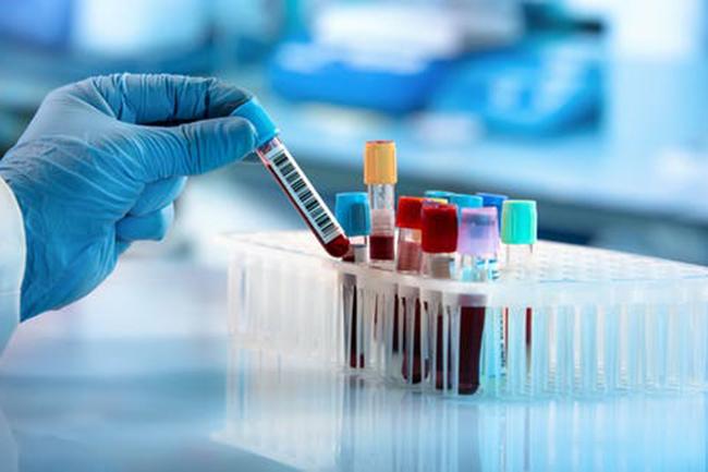 Minuwangoda Covid-19 cluster registers 73 more fresh cases