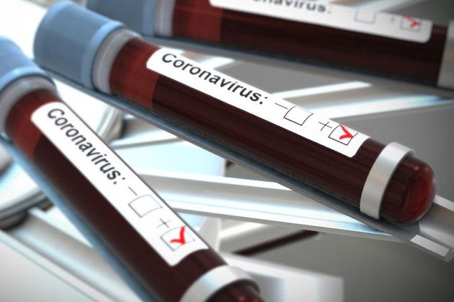 208 more coronavirus cases detected