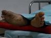 Man pronounced dead regains consciousness at hospital morgue
